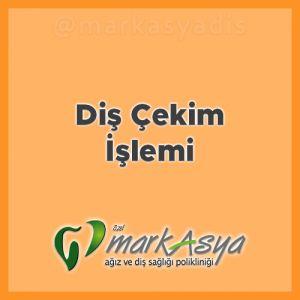 Antalya Diş Hekimi - Diş Çekimi