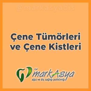 Antalya Diş Hekimi - Çene Tümörleri ve Çene Kistleri
