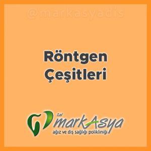 Antalya Diş Hekimi - Röntgen Çeşitleri